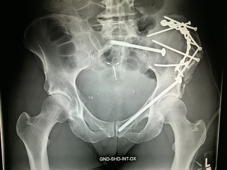 "X-ray of cyclist hit by truck given the ""all clear"" wave."